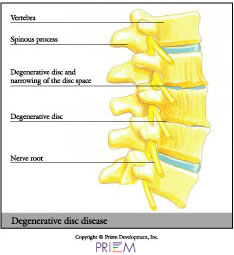 Degenerative disc,home remedies for back pain South Shore, home remedies for neck pain South Shore, home remedies for back pain Boston, home remedies for neck pain Boston, nonsurgical treatment for back pain south shore, nonsurgical treatment for neck pain south shore, nonsurgical treatment for back pain Boston, nonsurgical treatment for neck pain Boston, spine anatomy library south shore, spine anatomy library boston