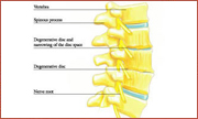 Physical Therapy,nonsurgical treatment for back pain boston, nonsurgical treatment for neck pain boston, nonsurgical treatment for back pain south shore, nonsurgical treatment for neck pain south shore, neck pain treatment south boston, home remedies back pain south shore, home remedies back pain boston, home remedies neck pain south shore, Quincy Spine Center, Dr. Mazzaferro, Minimally invasive spine surgery Quincy, home remedies for back pain Boston, Non-surgical treatment for back pain Massachusetts, spinal injections Boston, spinal injections Quincy, back pain treatment Quincy, spine center Quincy, Herniated disc Quincy Massachusetts, Spine surgery second opinion Massachusetts, Spine surgery second opinion Boston, home remedies for neck pain boston
