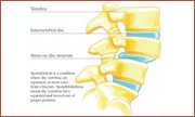 spondylolsis treatment boston,  spondylolsis treatment south shore, nonsurgical treatment for back pain boston, nonsurgical treatment for neck pain boston, nonsurgical treatment for back pain south shore, nonsurgical treatment for neck pain south shore, neck pain treatment south boston, home remedies back pain south shore, home remedies back pain boston, home remedies neck pain south shore, Quincy Spine Center, Dr. Mazzaferro, Minimally invasive spine surgery Quincy, home remedies for back pain Boston, Non-surgical treatment for back pain Massachusetts, spinal injections Boston, spinal injections Quincy, back pain treatment Quincy, spine center Quincy, Herniated disc Quincy Massachusetts, Spine surgery second opinion Massachusetts, Spine surgery second opinion Boston, home remedies for neck pain boston